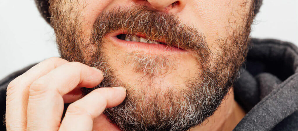 common beard problems and how to treat them