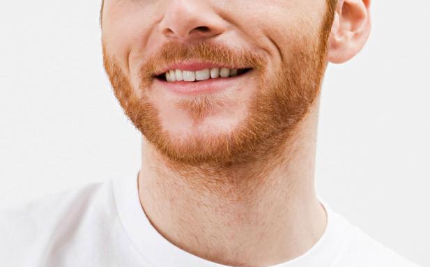 ginger beard hair